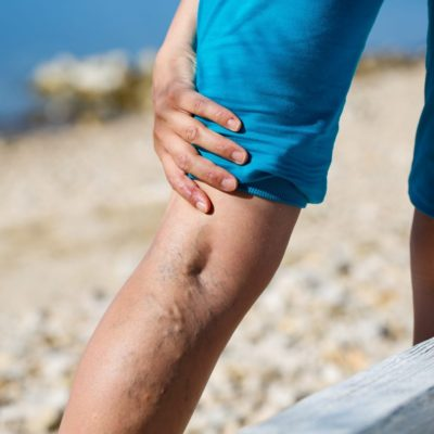 Top 5 Symptoms Of Those With Varicose Veins